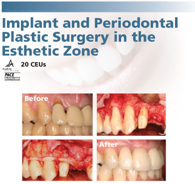 Course 2 - Implant and Periodontal Plastic Surgery in the Esthetic Zone